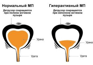 гиперактивный МП