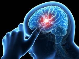 опухолевые процессы в головном мозге